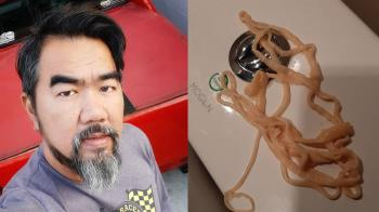 嚇壞!44歲男上廁所 竟拉出10公尺寄生蟲