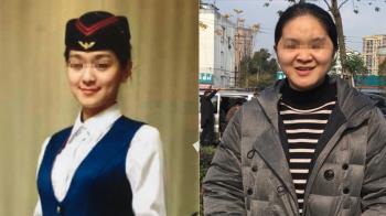 23歲空姐墜7樓毀容 失憶4年:房間有壞人