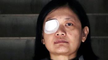 香港示威:右眼失明的印尼女記者控訴警暴