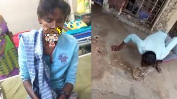 男跟眼鏡蛇玩親親 下秒被咬成香腸嘴