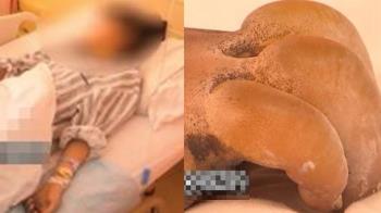 國中妹校內掃雪手指腫3倍 醫搖頭:恐截肢