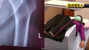 27歲OL跌倒大腿骨折 醫揭傷身真相