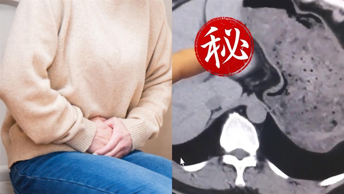 女腹部劇痛求診 醫一看嚇:它待體內8年