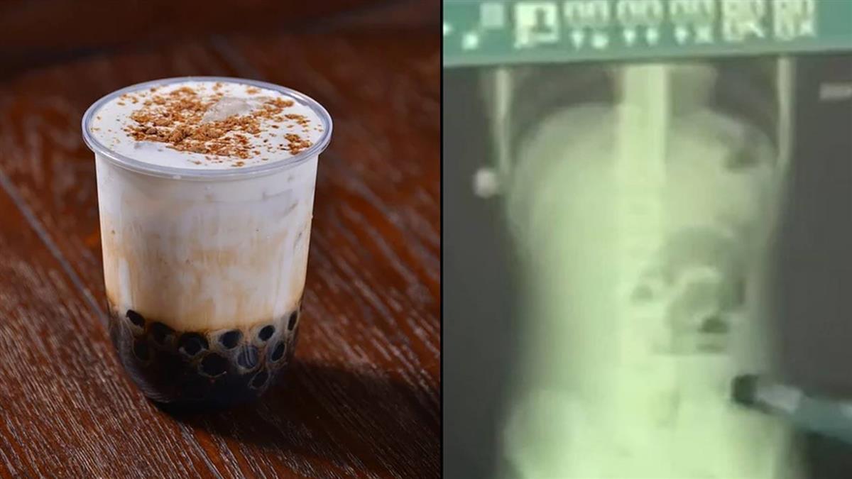 喝珍奶直接吞!13歲男腹痛 驚見腸卡2異物