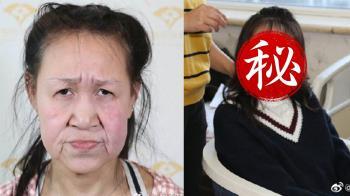 15歲罕病少女滿臉鬆弛如老婦 整型後找回青春