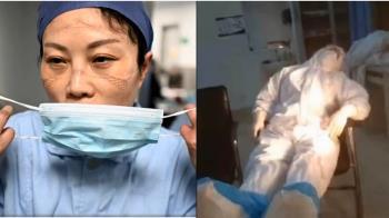 搶救武漢肺炎病患 醫護人員臉上都是「壓痕」