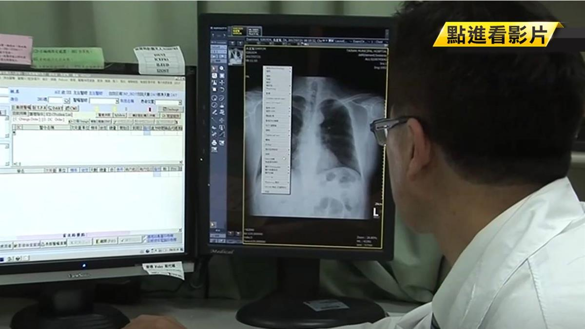 武肺痊癒後遺症!女台商肺纖維化 醫師回應了