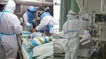 武肺新藥要出來了!台灣最快下月加入臨床試驗