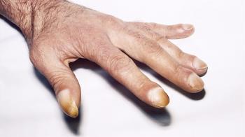 男指甲冒詭異黑線 拖5年罹皮膚癌王慘截肢
