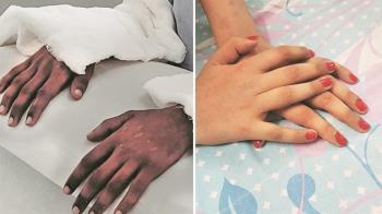 女大生移植男性雙手 1年後竟膚色轉淡變女性