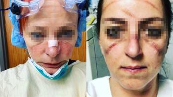 心疼!醫護人員摘下護目鏡 滿臉傷痕模樣曝