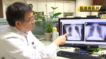 肺炎重症康復也會肺纖維化 醫:恐需要移植