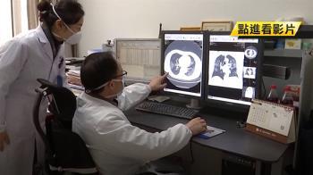 7重症患者仍在加護! 台多輕症 病毒需長時間排除