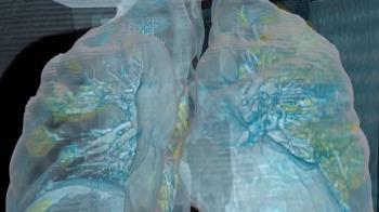 2肺葉全發炎 武漢肺炎患者3D肺部影像曝