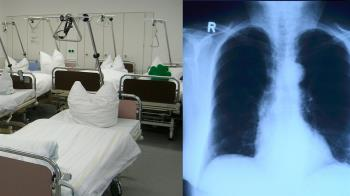 胸口像被炸過!醫曝武肺患者X光慘況超嚇人