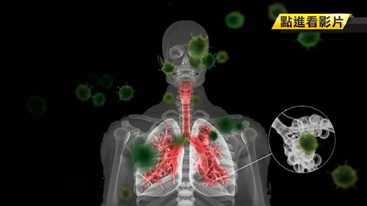 增強免疫力抗武漢肺炎病毒? 醫師解惑:剛剛好就好