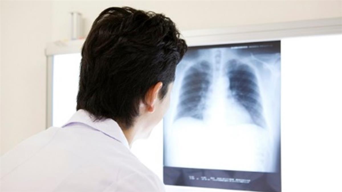 沒有感冒史!20多歲男說話喘 醫照X光恐死亡