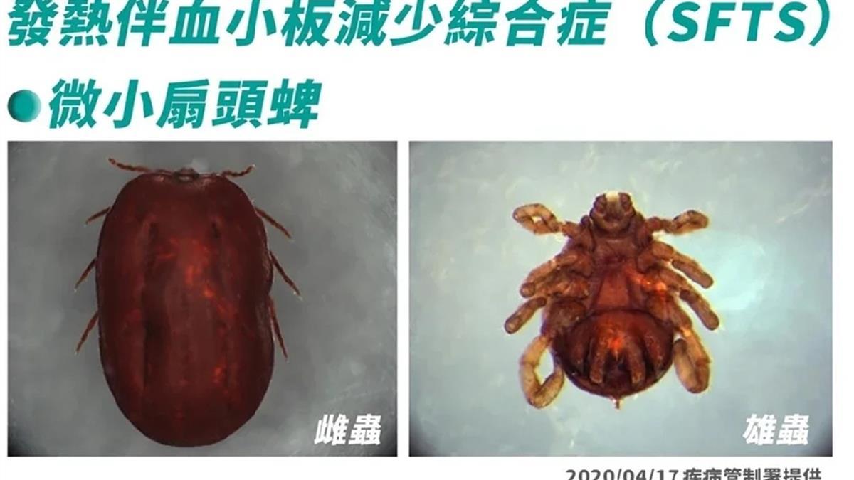 致死率17%!蜱蟲叮咬患怪病 台灣現蹤