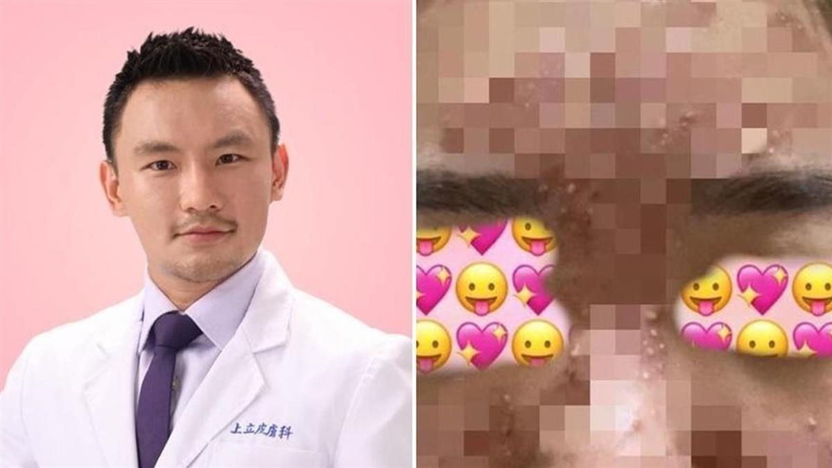 女滿臉爆痘控診所事後不理 醫打臉掀內幕:在跟我哈囉嗎?