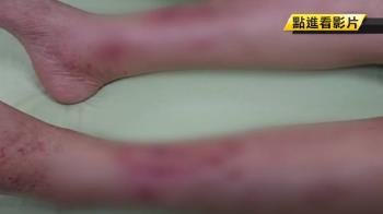 腫成象腿!梅雨季積水多 八旬農夫雙腳感染