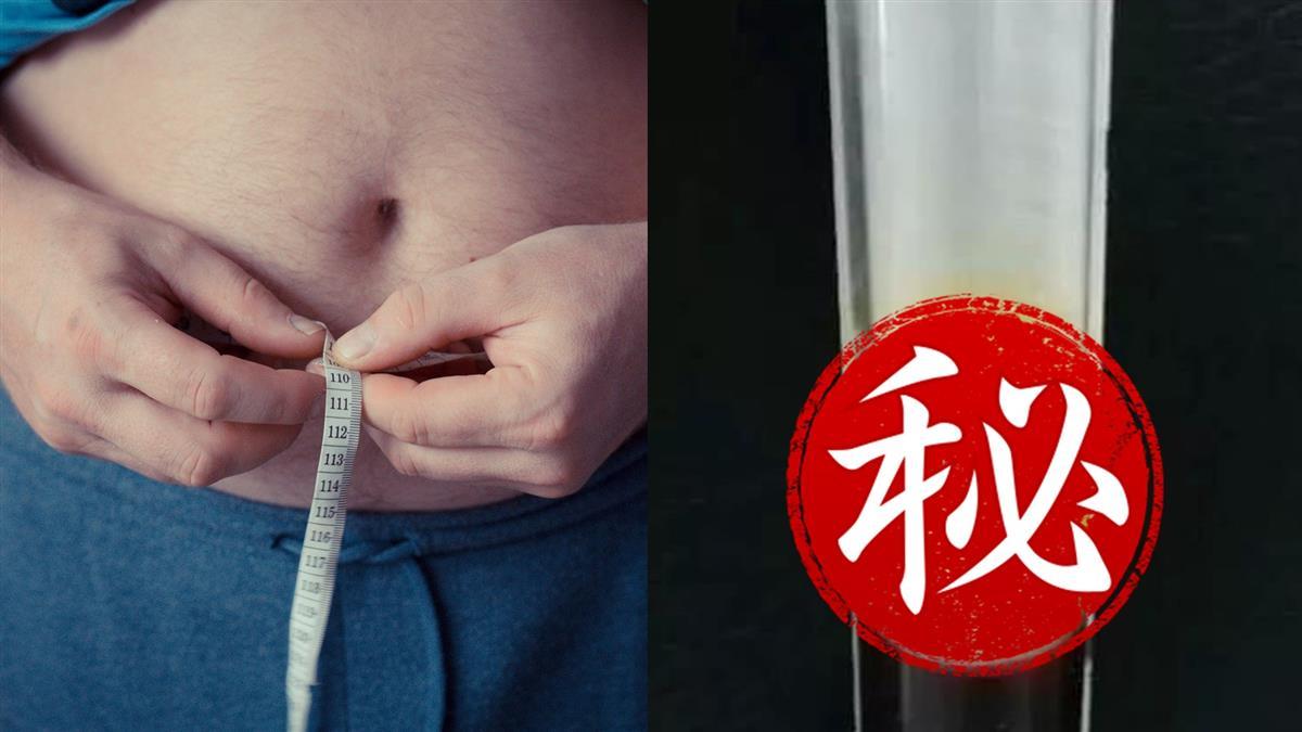 愛吃宵夜!100kg男突腹痛險猝死 醫抽血見「奶白色」