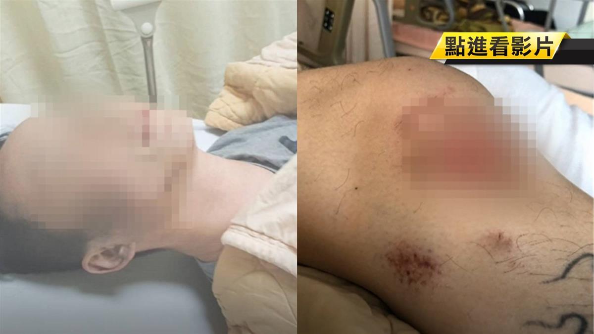 交通事故出勤 竟踹斷男膝蓋!警家屬:一條腿只值20萬