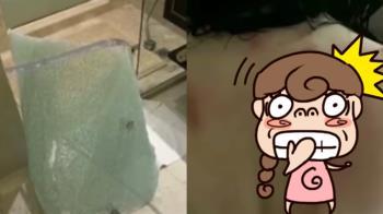 住酒店洗澡…玻璃滑門突炸裂 OL「血痕貫穿整個背」
