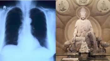顯靈了!X光片驚見觀世音 家屬秒跪…醫師揭反轉真相