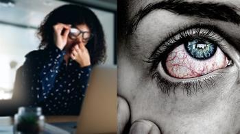 中年女眼珠凸成荔枝 醫曝出現六症狀…情況不單純