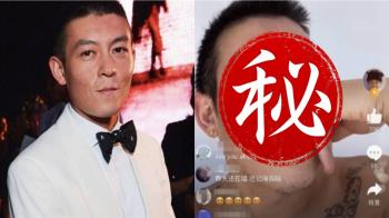 昔日男神崩壞!39歲陳冠希滿臉黑斑、皺紋