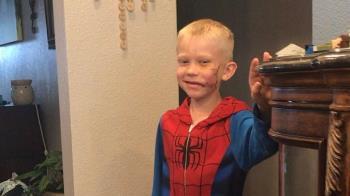 拚死護妹!6歲勇哥被狗咬毀容 復仇者聯盟英雄紛致敬