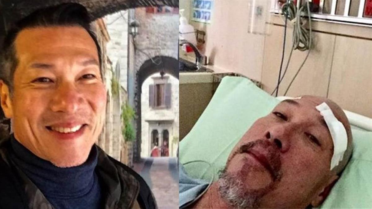 20年隱疾纏身!61歲黃仲崑腦部開刀竟全程不麻醉