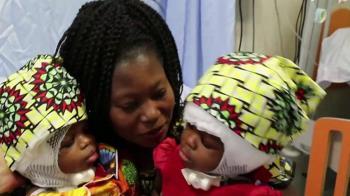 意大利頭部連體女嬰通過手術成功分離
