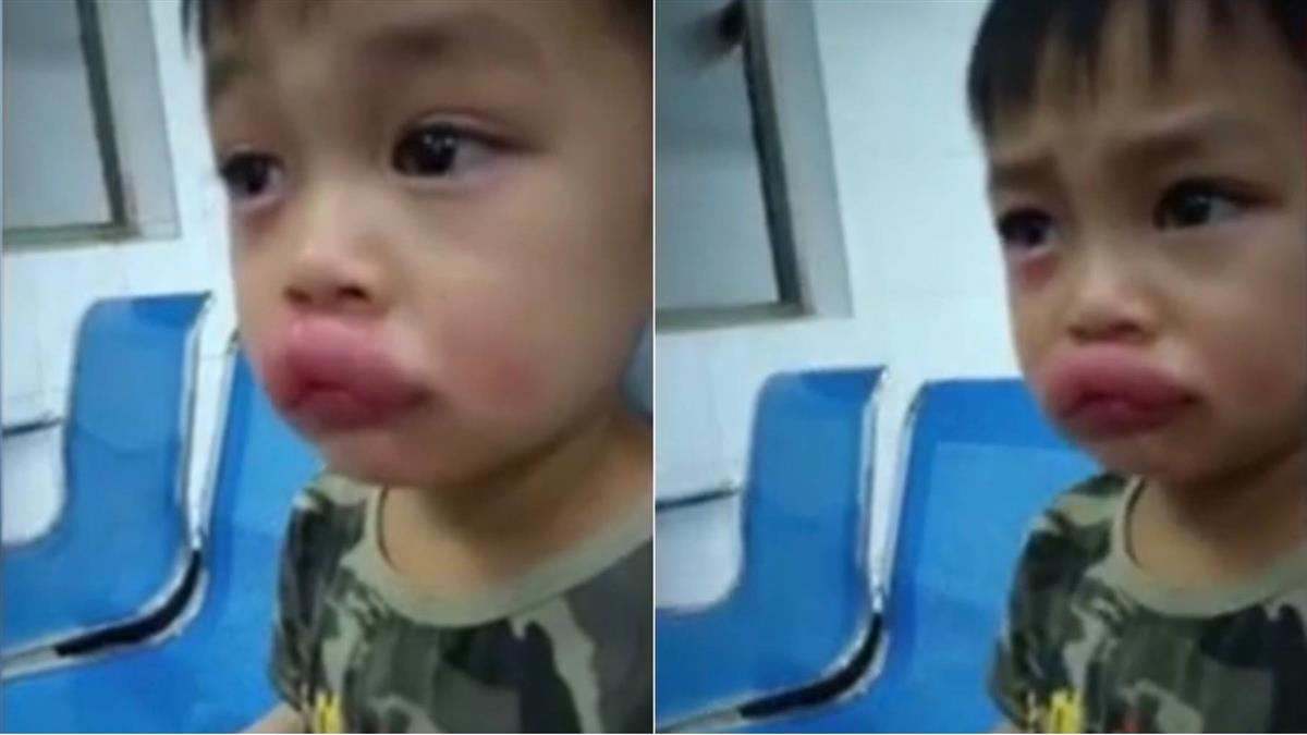 4歲童吃自種葡萄慘變「性感嘟嘟唇」 眼角帶淚爸笑瘋