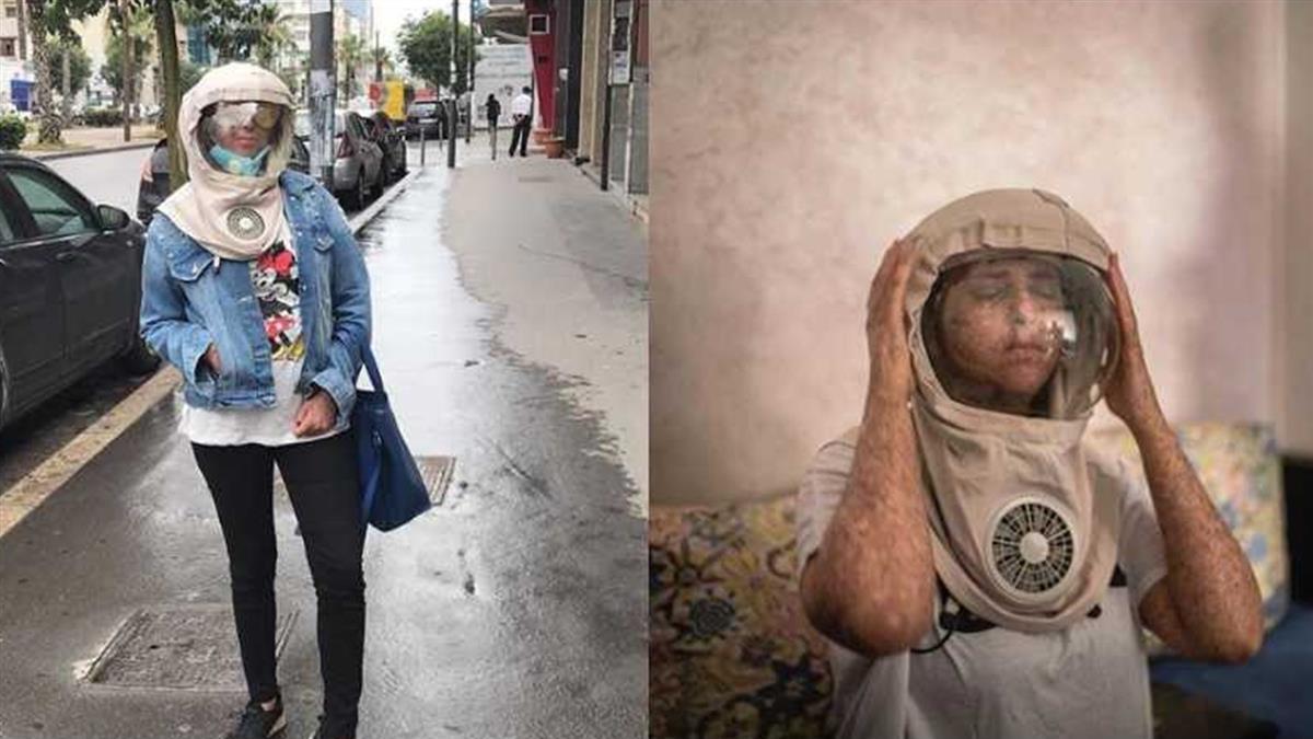 對陽光過敏!女生活如吸血鬼般 外出須戴太空面罩