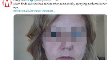 香水噴眼!她發現癌症急摘眼球 5年後又慘了