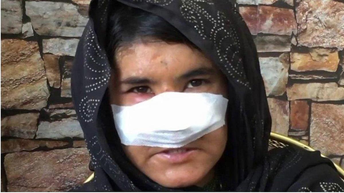 阿富汗女子遭丈夫切鼻子,醫生自願幫她重拾正常外表