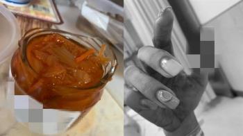 玻璃罐一扭就破!正妹手指爆血縫6針 廠商回應了
