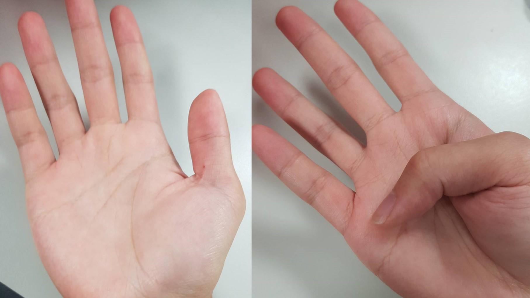 主動脈剝離高危險群?手指頭這樣做 1秒就能檢測