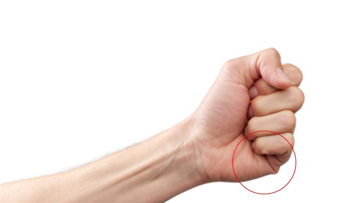 「主動脈剝離」致死率極高 醫:一個動作可自我檢測