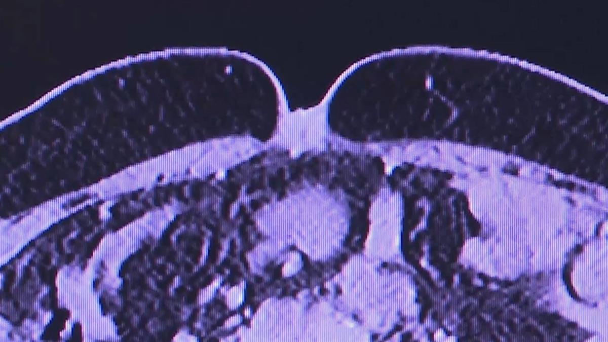 40歲女肚臍冒痘!一個月內「綠豆變花生米」 治療半年仍過世