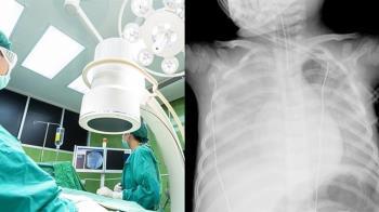 發病3天就不治!10歲童高燒咳到吐 照X光「肺一片白」