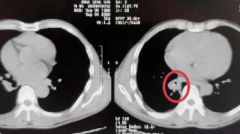 男久咳不癒還見血!醫師檢查嚇壞 氣管挖出20年前異物