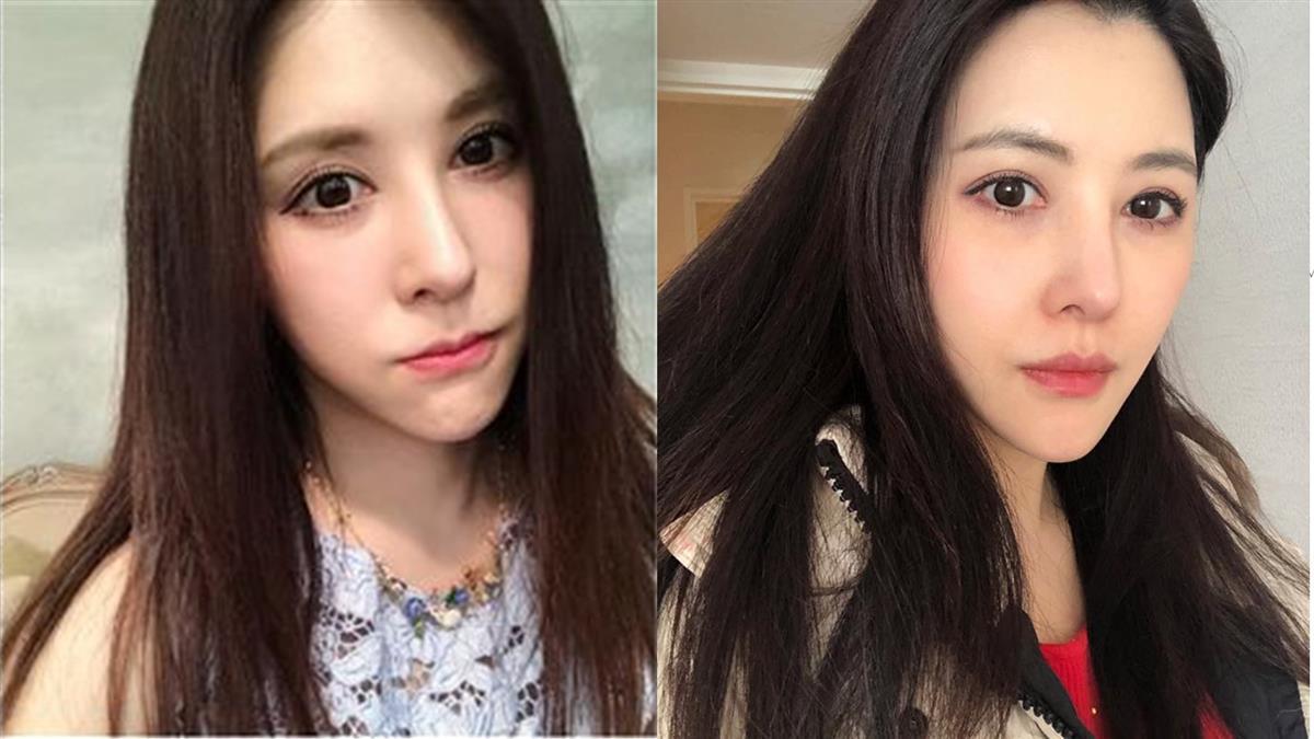 寶寶沒心跳了!穆熙妍結婚6年 沉痛告白痛失小孩