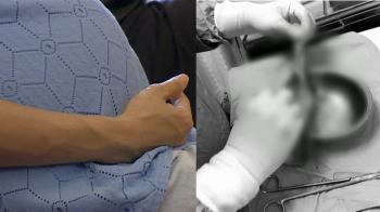 獨 / 扯!新北婦剖腹產大塊紗布留肚內 爆痛以為長腫瘤
