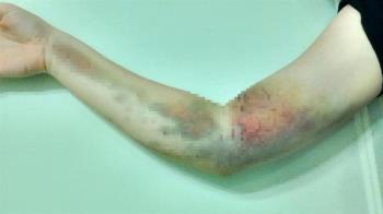 17歲妹首次捐血右手卻廢了!護理師插錯血管害她一身病
