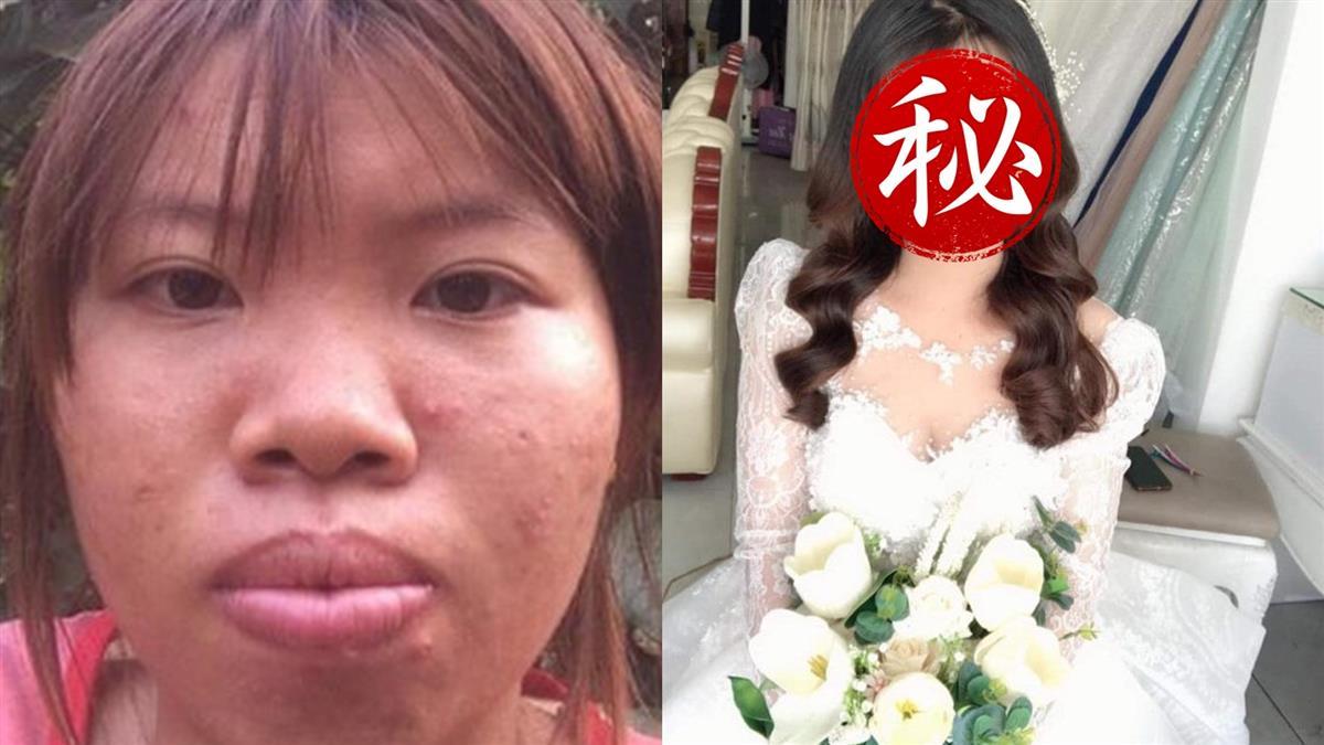 砸3億整型嫁豪門!25歲人妻慘被劈腿心碎離婚 最新近況網跪了