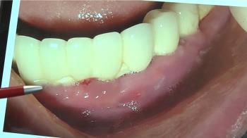 婦為便宜植入全口迷你牙根 假牙鬆動無法進食
