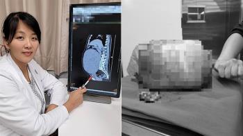 台中女腹爆痛!就醫取出8公斤子宮肌瘤 醫嚇:比雙胞胎大