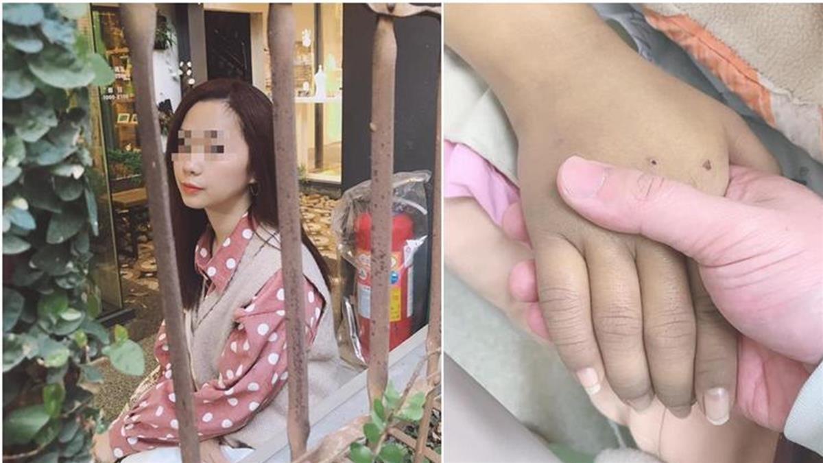 28歲女產後疑打疫苗亡 夫慟「她被折磨56天」解剖:二次傷害